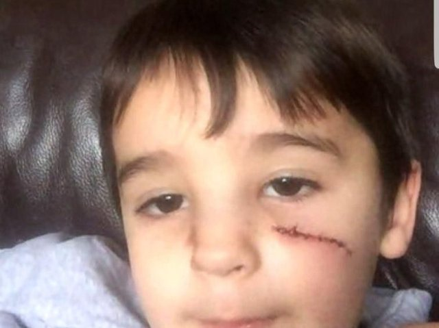Boy, four, left needing surgery after being hit during