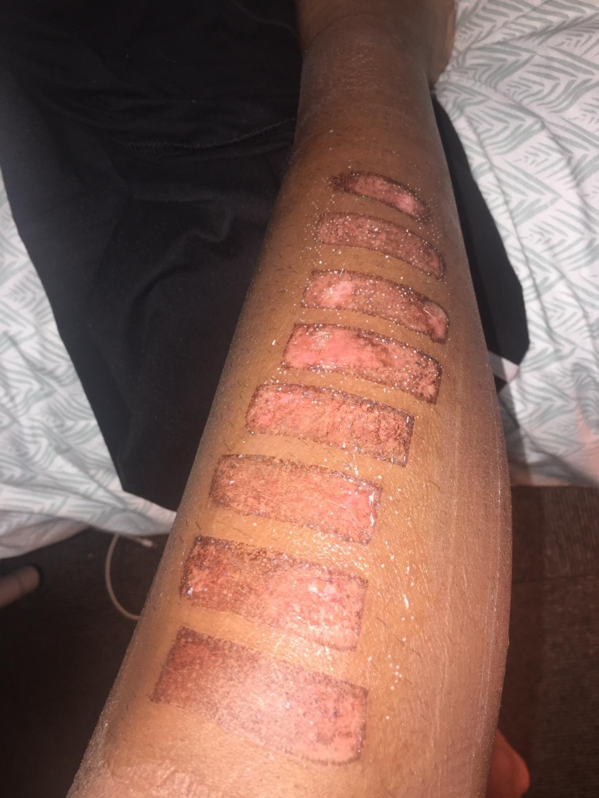 Warning Distressing Photos Woman Left Permanently Scarred After