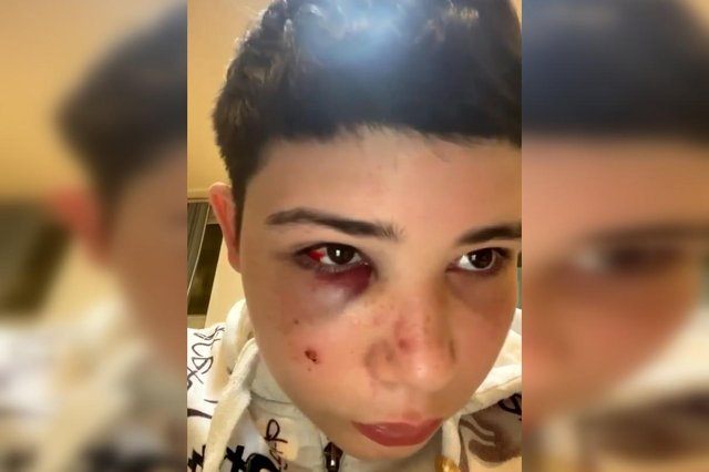Gabriel Sousa after the attack in Sheffield