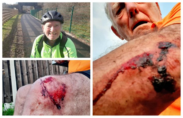 Sheffield councillor Peter Price has made a quick recovery following a nasty bike ride