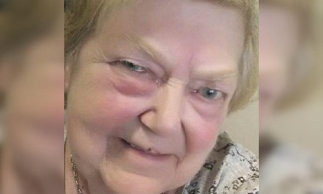 Tragic Elaine Chamberlain - SWNS