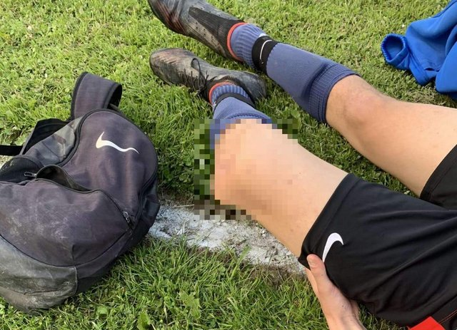 Neil's son, Lucas dislocated his knee during a football game on May 27. Picture by Neil Asquith.