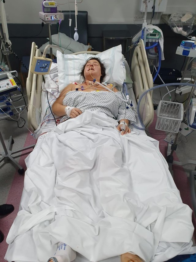 Gill Wood underwent a 13-hour operation at Sheffield's Royal Hallamshire Hospital.